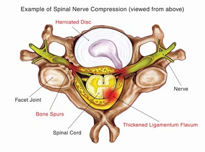Nerve compression due to herniated disc may require ACDF