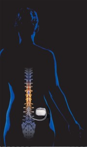 Implanted spinal cord stimulator SCS