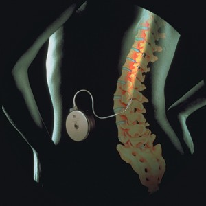 Intrathecal pump implanted in the abdomen